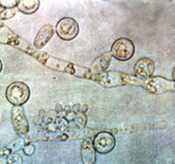 candida albicans picture